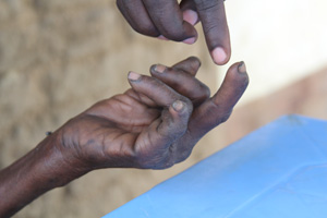 An NCA staff member examines Halima's hand. If leprosy symptoms are diagnosed early enough, patients do not lose their fingers. Credits: Sheahen/Caritas