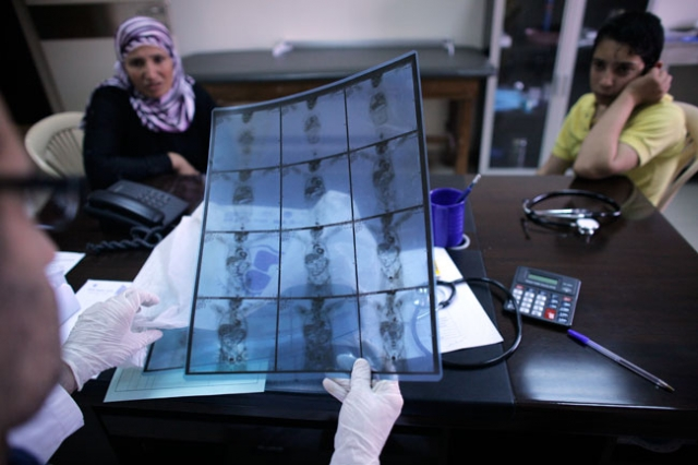 Doctor Rouchdi El Hajj (L), pediatrician, looks at X-ray of Mohammed (R) suffering from a cancer at St Michel Medico-Social Center, supported by Caritas, on June 20, 2014 at Sed El Baouchrieh in Beirut. Credit: Matthieu Alexandre/Caritas