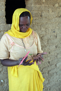 A woman who is taking tablets after being diagnosed with leprosy examines her hand, which has not been affected. Credit: Sheahen/Caritas