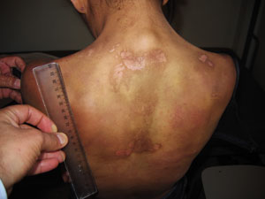 Aneesa was hit, kicked, burnt with an iron, scalded and left naked in the cold. Credits: Caritas Lebanon