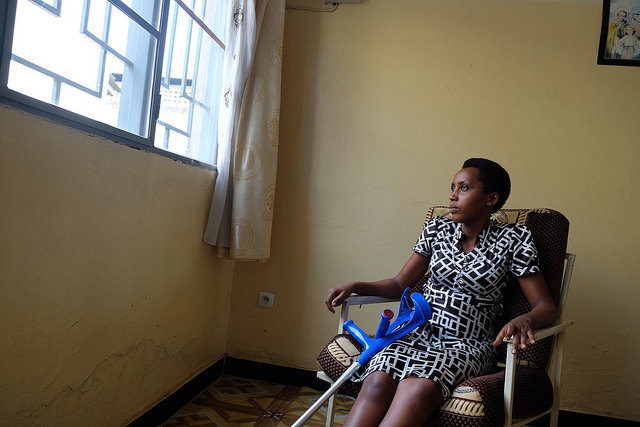 Caritas helps Daphne, 23, pay for medical treatment for her badly injured leg. Photo by Nicholson/Caritas