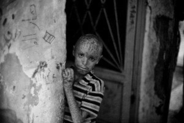 La tragedia de Siria en blanco y negro