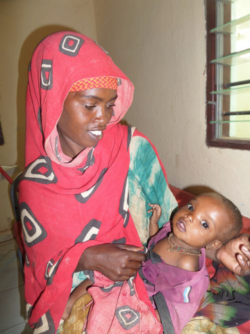 Caritas supports feeding programmes in Luuq hospital in Somalia. Credit: Catherine Mumbi/Trocaire