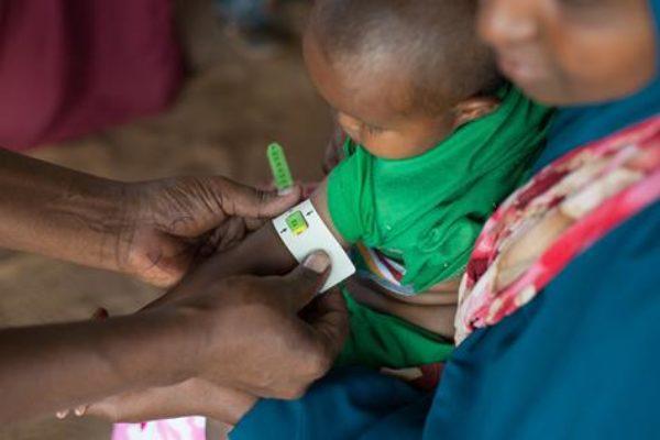 Cholera and famine strike Somalia and South Sudan